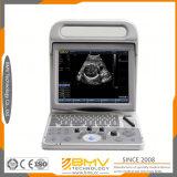 Bcu20 휴대용 디지털 휴대용 휴대용 퍼스널 컴퓨터 B/W 초음파 스캐너 최고 가격