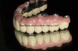 Riabilitazione completa metal-ceramica dentale dell'innesto della bocca