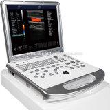 Цвета компьтер-книжки высокой точности Sun-906s оборудование машины блока развертки ультразвука Doppler медицинского портативного цифров сердечное для сердца