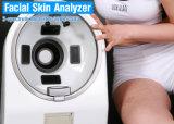Analisador facial da qualidade da pele do diagnóstico da pele