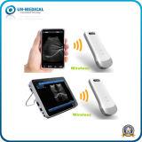 Sonda de ultrasonido escáner con la función inalámbrica