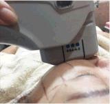 La strumentazione medica di bellezza di Hifu di ultrasuono delle 5 cartucce per pelle stringe