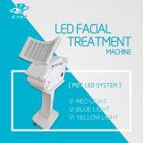 PDT 여드름 흉터 제거 피부 관리 얼굴 치료 아름다움 장비
