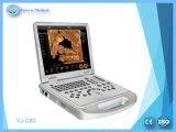 고품질 가득 차있 디지털 B/W 휴대용 퍼스널 컴퓨터 초음파 스캐너 (YJ-U580)