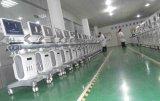 De goede Fabrikant van de Scanner van de Ultrasone klank van China van de Verkoop (K10)