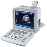 Beweglicher Ultraschall-Scanner mit Arbeitsplatz -- Martin