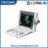 Ysd1300c Qualitäts-Digital-beweglicher Ultraschall-Scanner