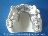 이동할 수 있는 틀니 코발트 크롬 부분적인 중국제 치과 실험실