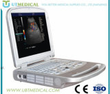 L'équipement médical avec le prix d'échographie Doppler couleur