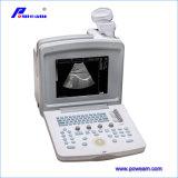 Ce keurde de Draagbare Digitale Scanner van de Ultrasone klank goed (WHYC30P)