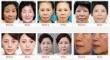 Equipo del salón de belleza del cuidado de piel de la máquina de Hifu para la mejora de la textura de la piel