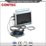 L'équipement hospitalier Etco2 moniteur de chevet du patient