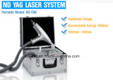 El mejor ND del Q-Interruptor de la revisión 2017: Retiro del tatuaje del laser de YAG
