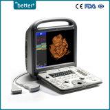 D'approvisionnement médical 4D d'échographie Doppler couleur Sonoscape S6