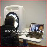 Анализатор качества кожи диагноза кожи лицевой