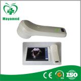 Mi-A010f hogar portátil iPhone iPad Wireless Scanner de la vejiga de la sonda de 4D