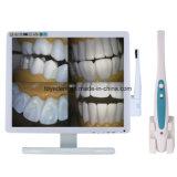 高リゾリューションの歯科カメラ内部の口頭VGA/USB
