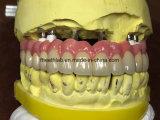 Ponte cheia do Zirconia do implante dental do arco