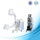 При рентгеноскопии C-Arm на рентгеновской установке Plx112