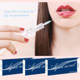 Injection de remplissage d'injection d'acide hyaluronique pour des languettes