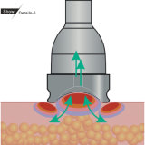 가벼운 체중을 줄이는 기계 (세륨, ISO13485, D&B)를 가진 Lightvac 진공