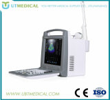 医療機器の無線ドップラーカラー超音波