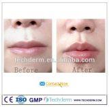 Anti Envejecimiento dérmico de Ácido Hialurónico Inyectable, relleno de labios