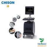 Chison I8のベストセラーのトロリーカラードップラーChison超音波機械