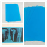Solution de coût le plus bas Inkjet Dry Blue Medical X Ray Film