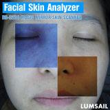 Gesichtshaut-Analysegerät für die Gefäss- und roten Punkte