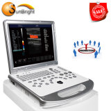 Ce/ISO патенты 3D/4D цветового доплеровского ультразвукового сканера портативных компьютеров
