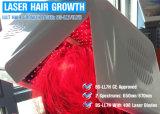 Diodo láser 650 nm de la máquina de recrecimiento de cabello terapia de vello con láser