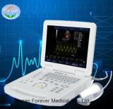 Медицинские цветового доплера портативного ультразвукового сканера с маркировкой CE ISO