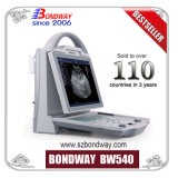 발광 다이오드 표시를 가진 휴대용 초음파 스캐너를 위한 최고 가격, (BW540) 명백한 심상, Handcarry 초음파