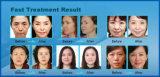 الصين [رف] كسريّ & حراريّة [رف] [أنتي-جنغ] وجه معالجة آلة