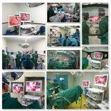 Alta Qualidade 3D Endosocpy laparoscópica com certificado CE Sistema de Câmara