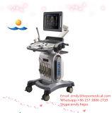 Explorador del ultrasonido de Doppler Digital del color de la carretilla 4D en médico