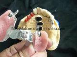 Бросание Partials металла с приложением Mk1 от лаборатории Китая зубоврачебной
