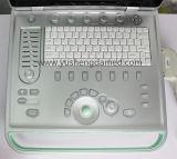 De hete Verkopende Ce Goedgekeurde Laptop van Doppler van de Kleur Machine Ysd518 van de Ultrasone klank