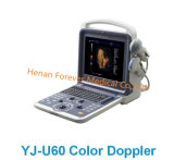 Machine Portable Médical D'échographie Couleur Doppler de Diagnostic (Yj-U60)