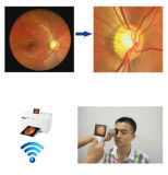 Digital Camera Non-Mydriatic Fundus tenue en main