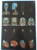 Película de PET de la película de impresión láser de rayos X