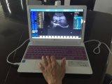 Usb-Fühler für Laptop-beweglichen Ultraschall-Scanner