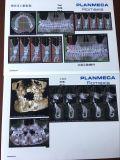 歯科フィルムの歯科画像のための青いX線フィルム
