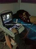 Couleur Doppler Doppler vasculaire d'onde entretenue d'écran LCD