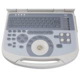 携帯用ラップトップの医学の超音波のスキャンナー(90要素) - Alisa