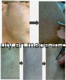 Машина депиляции удаления волос