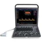 Ultrasuono vascolare di colore portatile di Sonoscape S8 Exp, Sonographie cardiovascolare
