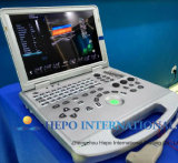 Scanner portatile di ultrasuono dell'apparecchio medico in ospedale