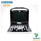 Оборудование ультразвука цены медицинской компьтер-книжки Chison Eco3 стационара портативной хорошее